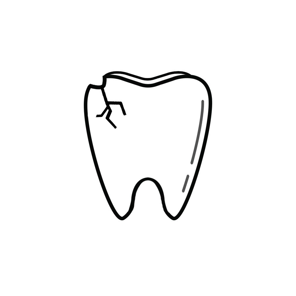 68739 Dentist | I Chipped a Tooth! What Can I Do?